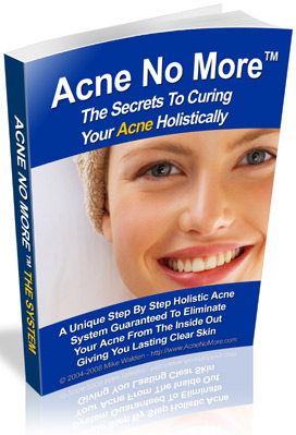 Acne No More Holistic Acne Cure